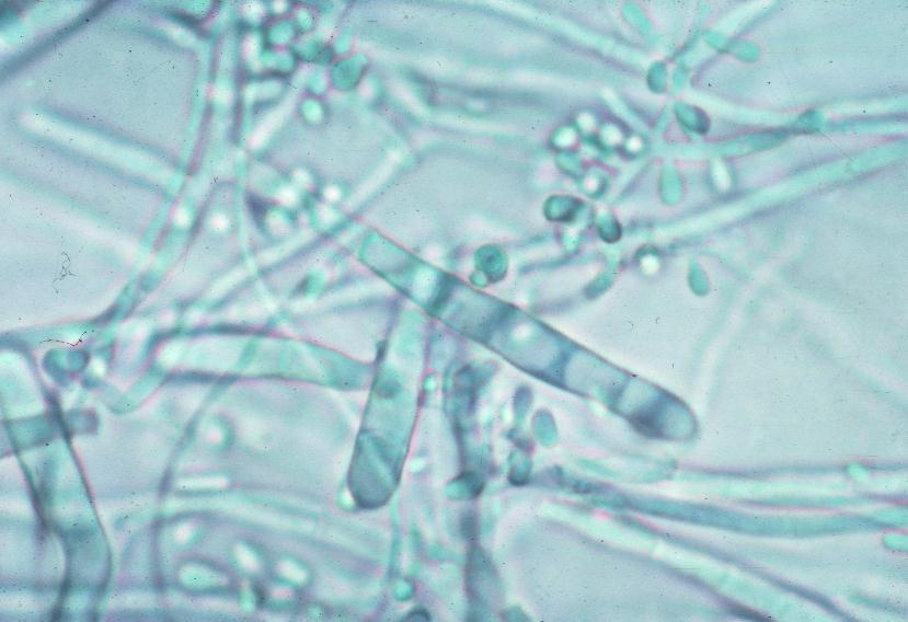 identification of dermatophytes He dermatophytes are a closely related group of fungi that cause infections of the keratinized tissues the stratum corneum of the skin, hair and nails (1) , some of which cause well defined.