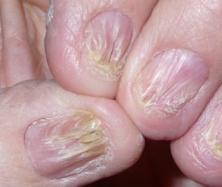 Pathologies mains/pieds et éducation thérapeutique - Diagnostic ...